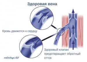 профилактика варикоза